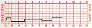 diagrama tacógrafo analógico - tipo 2